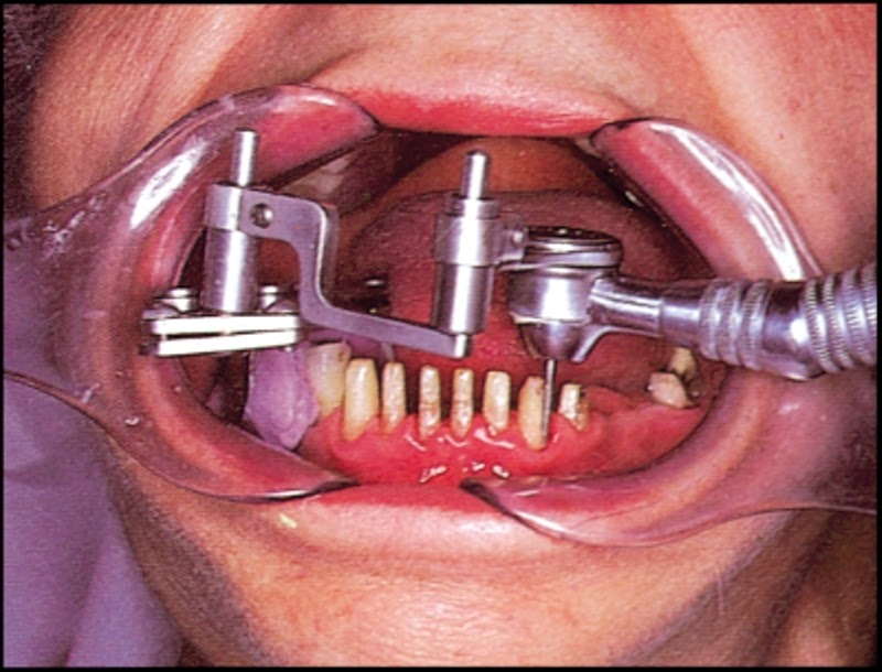 Фото как делают коронку на зуб