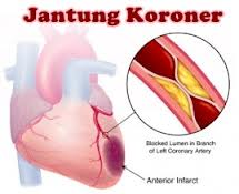 Terapi Jantung Koroner – Butuh Informasi Lengkap Seputar Jantung Koroner? Kunjungi www.terapijantungkoroner.com