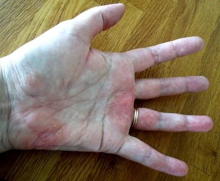 psoriasis på fingrarna