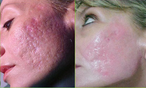how to get rid of acne scars acne scar removal male