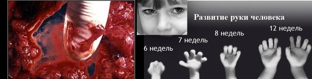медикаментозный аборт,