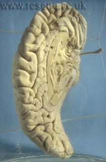 Babbage's Brain