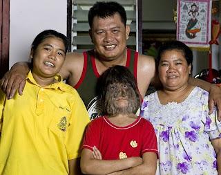 Gadis Paling Berbulu Di Dunia [ www.BlogApaAja.com ]