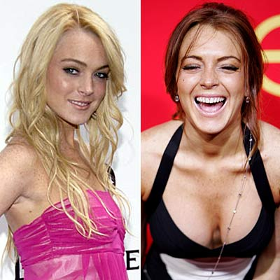 Lindsey Lohan Teeth