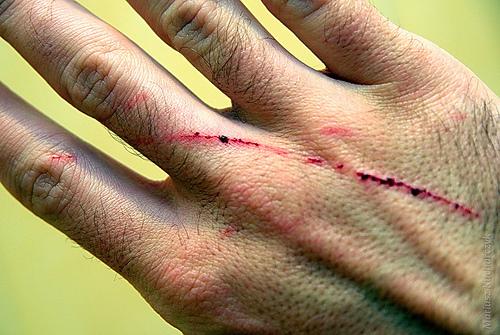 Cat Scratches Man S Eye