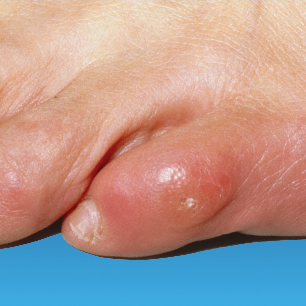 Corns and Calluses: Learn About Treatment, and Possible Complications