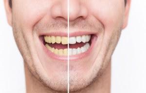 Cara Menghilangkan Gigi Kuning Akibat Merokok Paling Ampuh Dan Alami