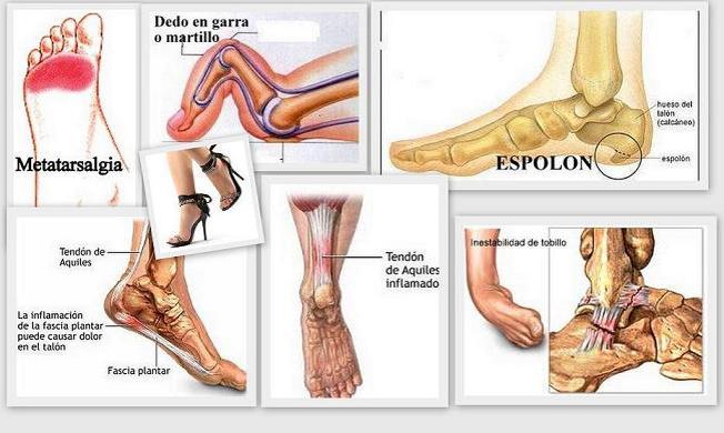 Los dolores en los riñones de la parte derecha a la cistitis