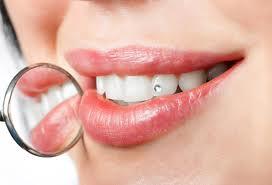 طرق الحصول على أسنان بيضاء وبراقة