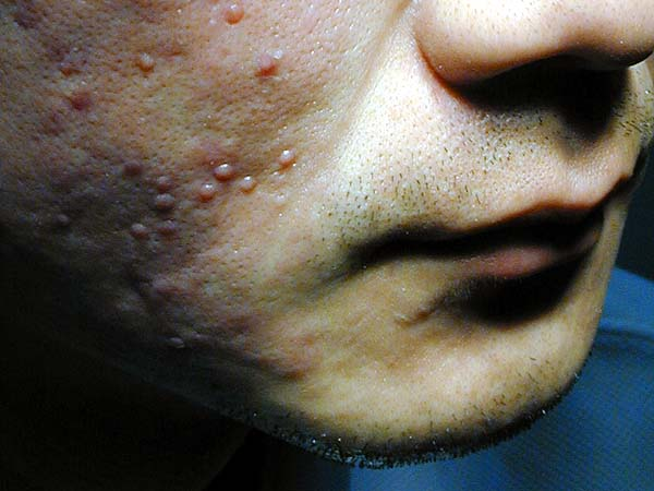 ice-pitting acne scar after punch graft