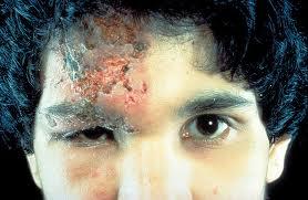 school medical harvard herpes ocular