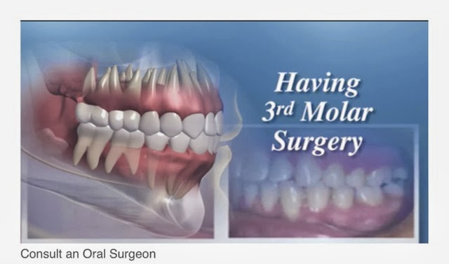 Oral And Maxillofacial Surgerywhat You Need To Know Dr Jennifer