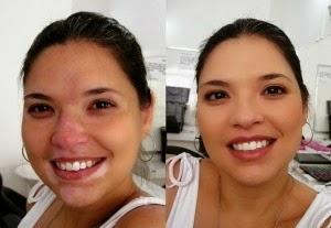 descubren-cura-vitiligo