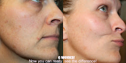 What would you change about your skin? What are you waiting for?