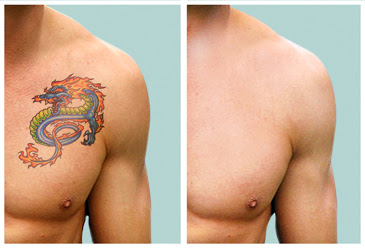 Enlever Un Tatouage Au Laser - Comment enlever un tatouage laser ou chirurgie Elle