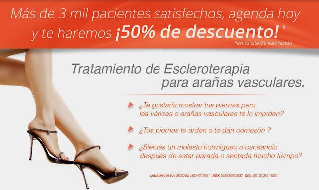 tratamiento de escleroterapia para arañitas vasculares varices en guadalajara mexico
