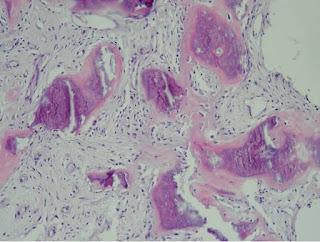 Elemente de anatomie patologica - Os si Articulatii