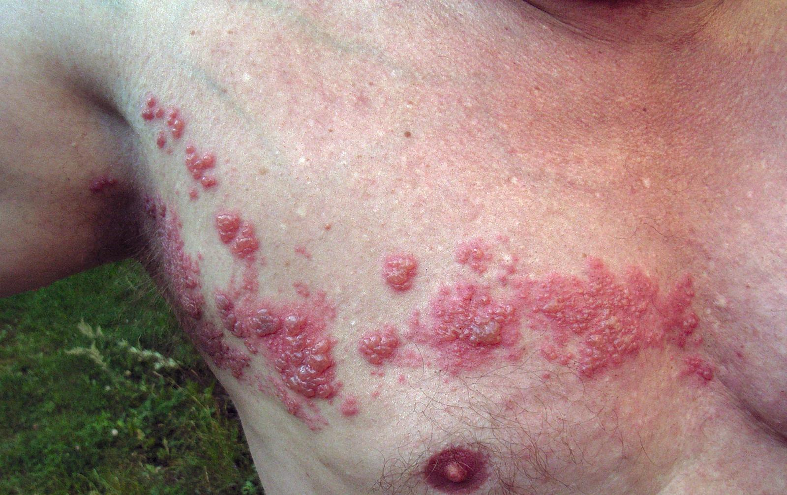 Tratamiento Efectivo Para El Herpes
