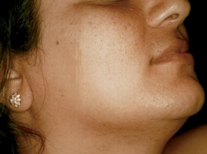 Natural Home Remedies for Facial Hair Removal