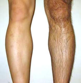 ayak bacak bölgelerine lazer epilasyon uygulaması