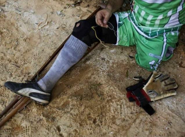 Un portero de fútbol que juega con una sola pierna