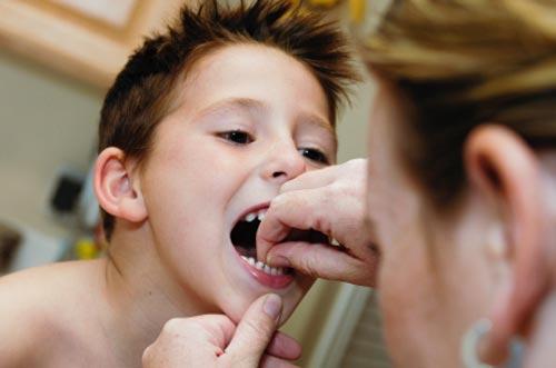 Cara Mencabut Gigi Anak