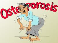 VIDEO SOBRE LA OSTEOPOROSIS