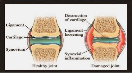 atasi sakit lutut dengan ajht shaklee