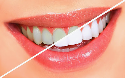 How can I remove plaque and improve my oral health chewing gum  Improve health and appearance dental fluoride