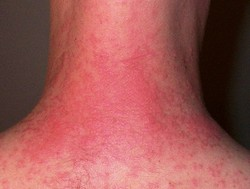 posts dermatology legs will stop itching show