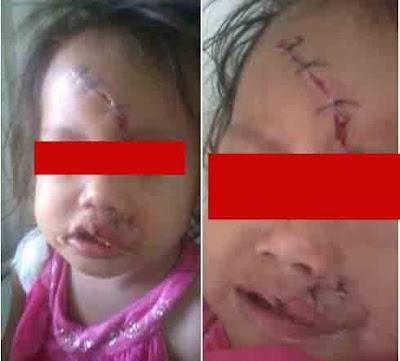 Seorang Anak Di Jahit Seperti Zombie Di Mukanya Oleh RSUD Siti Aisyah Lubuk Linggau