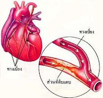 อาหารเสริมดูแลหลอดเลือดและหัวใจ คลิ๊ก!!!