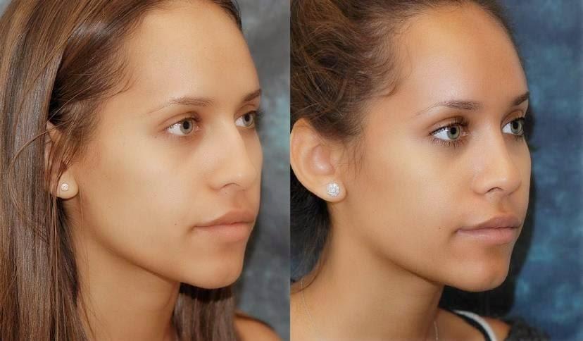 وصفة لعلاج الصلع من الأمام و الشعر الخفيف