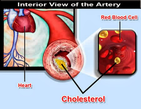 Cara Menyembuhkan Penyakit Kolesterol Tinggi