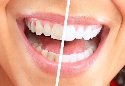Cara Ampuh Memutihkan Gigi Kuning Secara Alami