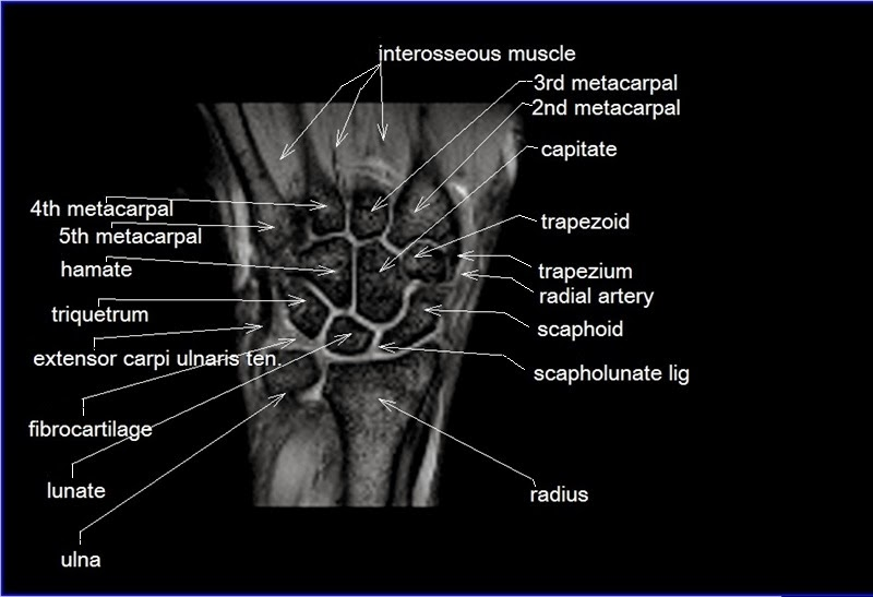 MRI Wrist anatomy simple | Radiology Anatomy Images