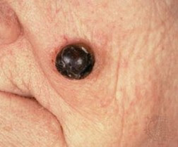examples of skin cancer