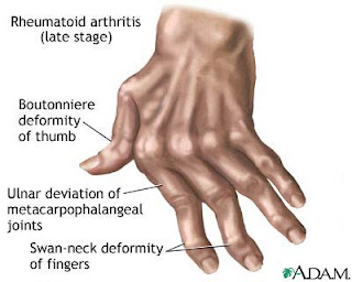 Nursing Diagnosis and Nursing Intervention for Rheumatoid Arthritis