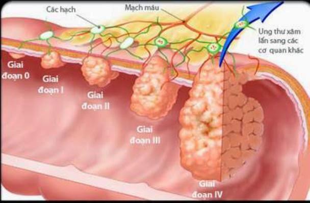 nguyên nhân triệu chứng ung thư dạ dày