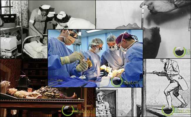 10 Tindakan Medis Mengerikan Sepanjang Sejarah Psikiatri