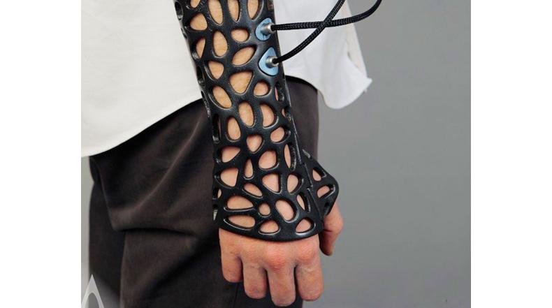 Molde impresa en 3D utiliza ultrasonido para acelerar la cicatrización ósea
