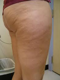 selulit yang diakibatkan oleh lemak, lemak boleh menyebabkan selulit, masalah selulit di paha, cara menghilangkan lemak berketul, lemak bertompok, tips hilangkan seluilit, rawatan selulit paling berkesan, zarraz paramedical