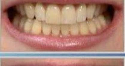 Anibal Ribeiro Ortodontia O Que Voce Precisa Saber Sobre