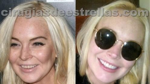Antes y después de los dientes de Lindsay Lohan