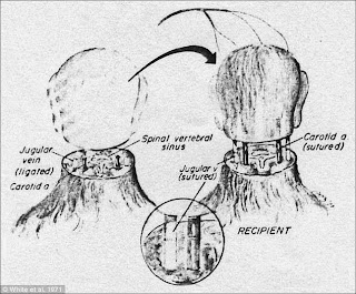 Orang Pertama Menjalani Transplantasi Kepala