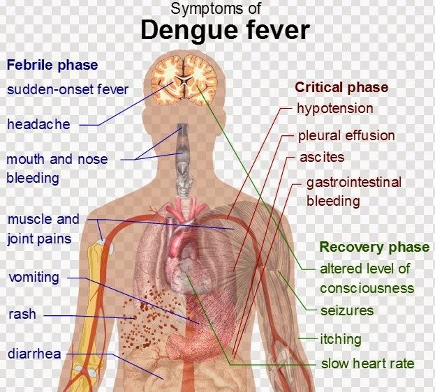 Essay writing on dengue fever