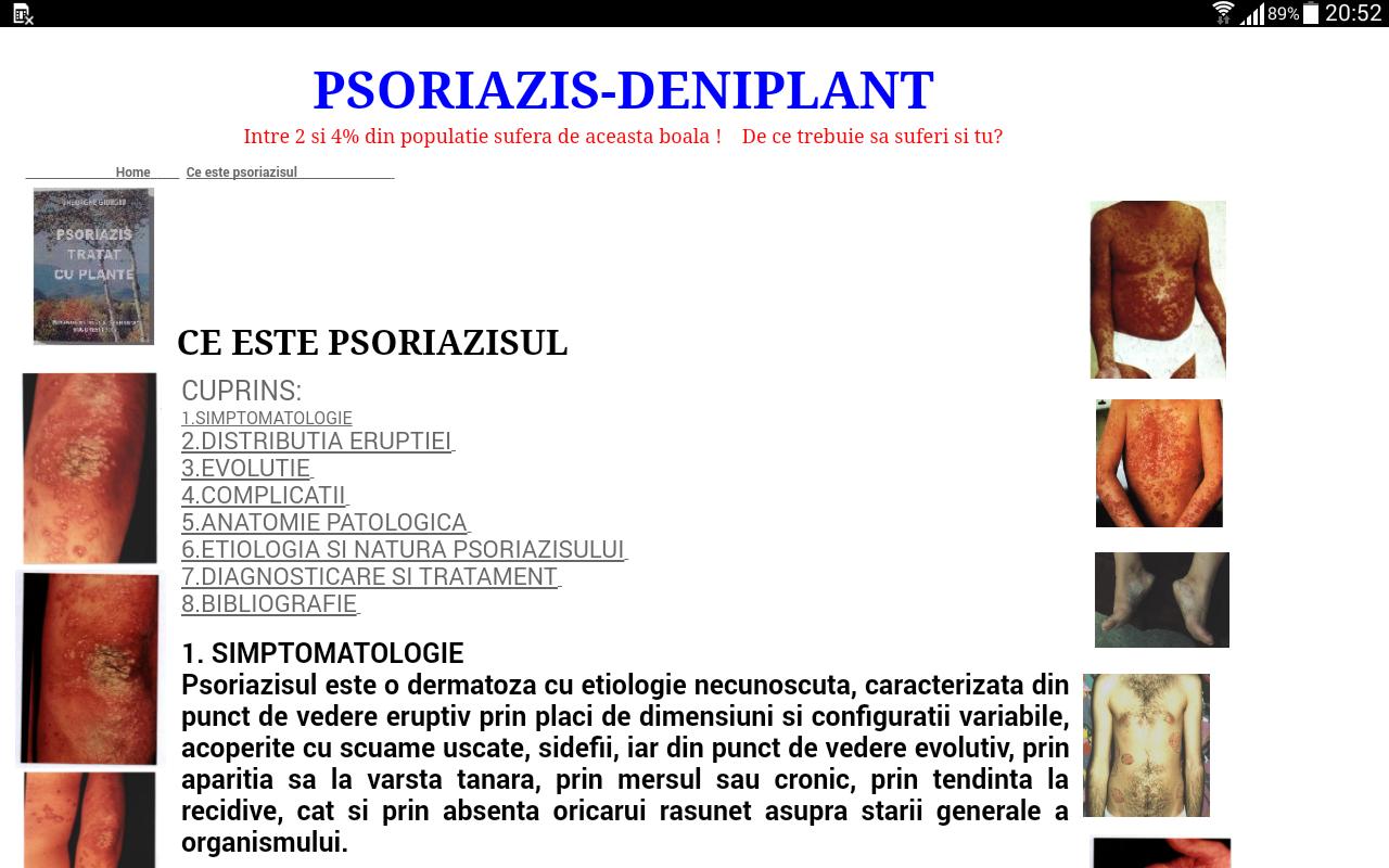 poliartrita reumatoida definitie cultuurstelsel