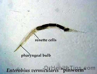 pinworms images