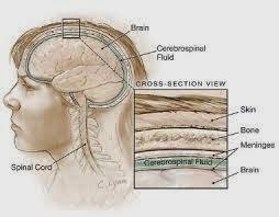 Pengobatan Tradisional Penyakit Radang Selaput Otak