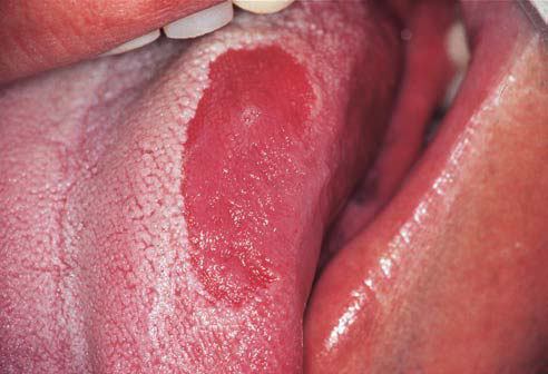 Pimple on Tongue, White, Under, Side, Tip, Back, Painful ...